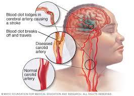 Obat Herbal Stroke Parah